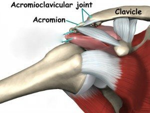 shoulder_impingement_causes01